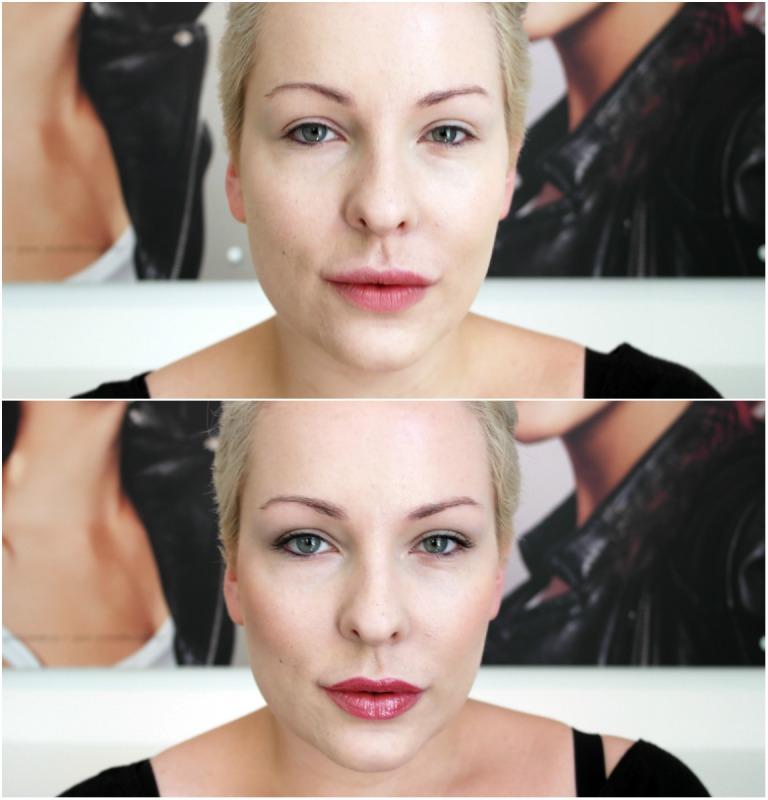 Før-Etter en face