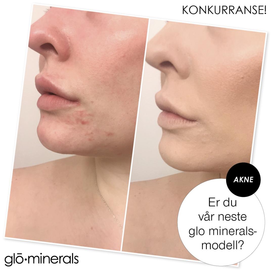 GM SM insta Akne ung hud modellkonk_2016